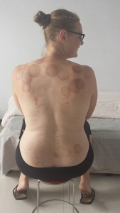 cupping-china-medicine-pain-purple-kungfu-wushu-shaolin